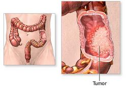 Benign Colon Tumors