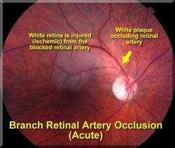 Central Retinal Artery Occulsion