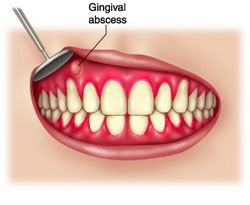 Gingival Abscess