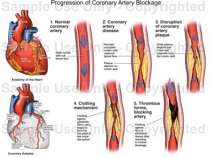 Coronary Sclerosis Symptoms And Treatment Healthy Inside