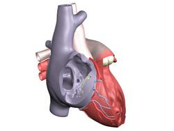 Tricuspid Valve Stenosis and Insufficiency