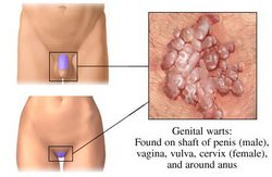 Genital Warts in Women
